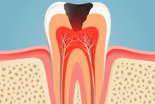 Root-Canal-Therapy-Sumner-WA