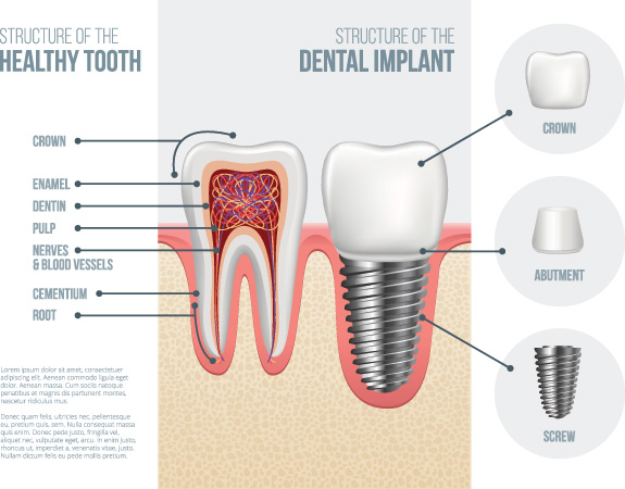 Teeth-Implant-Sumner-WA