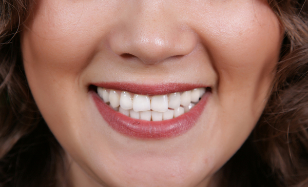 cosmetic-dentistry-orting-wa