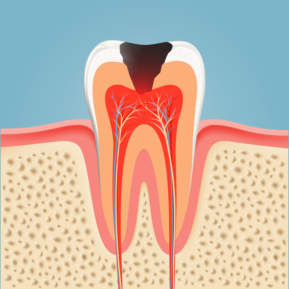 Root-Canal-Procedure-Downtown-Puyallup-WA